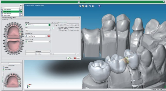 Straumann Cares Visual Validated Workflow Ceramics Dental Lab