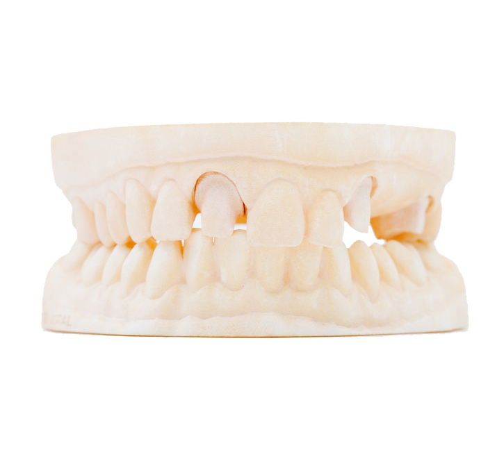 Ceramics Dental Lab CAD CAM Systems Digital Printed Model