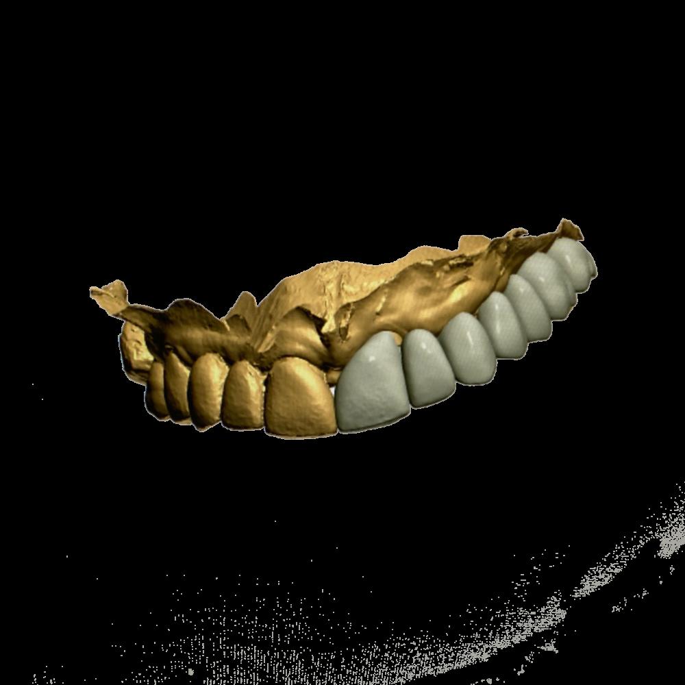 Ceramics Dental Lab CAD CAM Systems Digital Printed Model-3