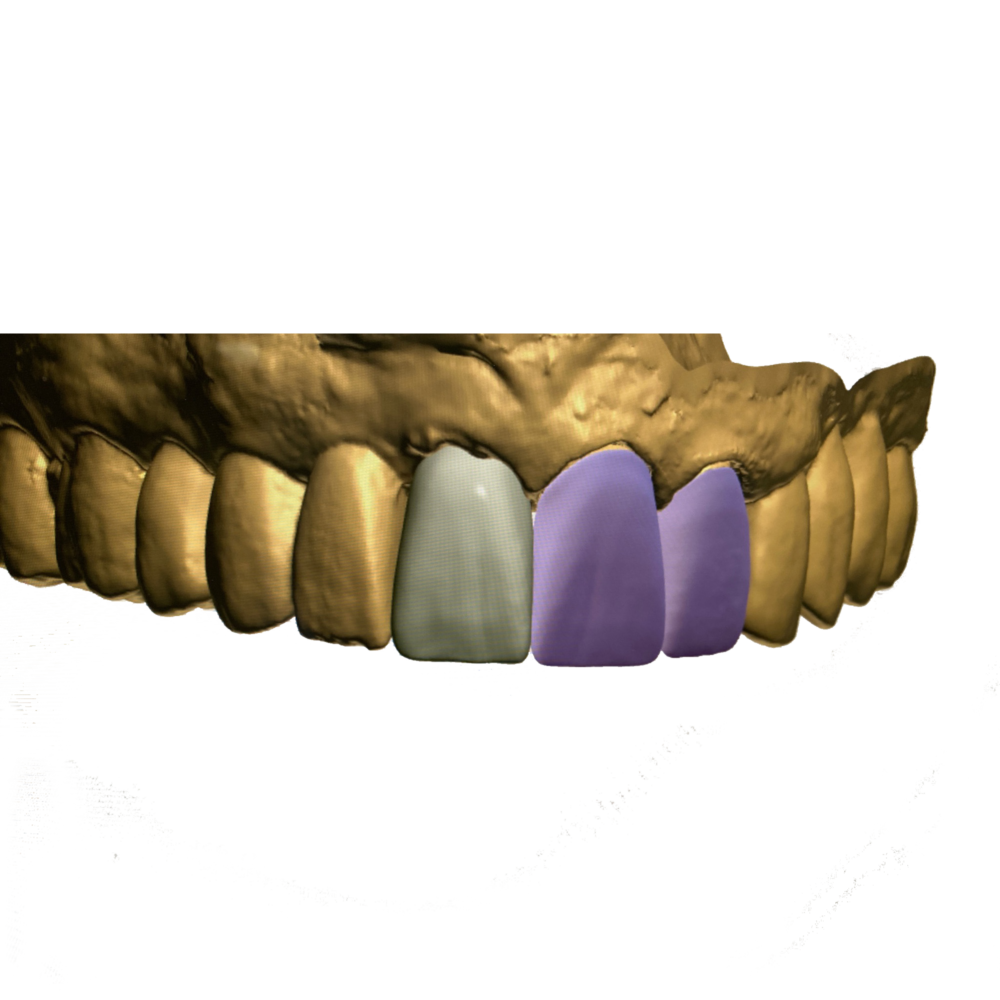 Ceramics Dental Lab CAD CAM Systems Digital Printed Model-6