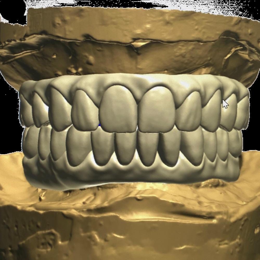 Ceramics Dental Lab CAD CAM Systems Digital Printed Model-8