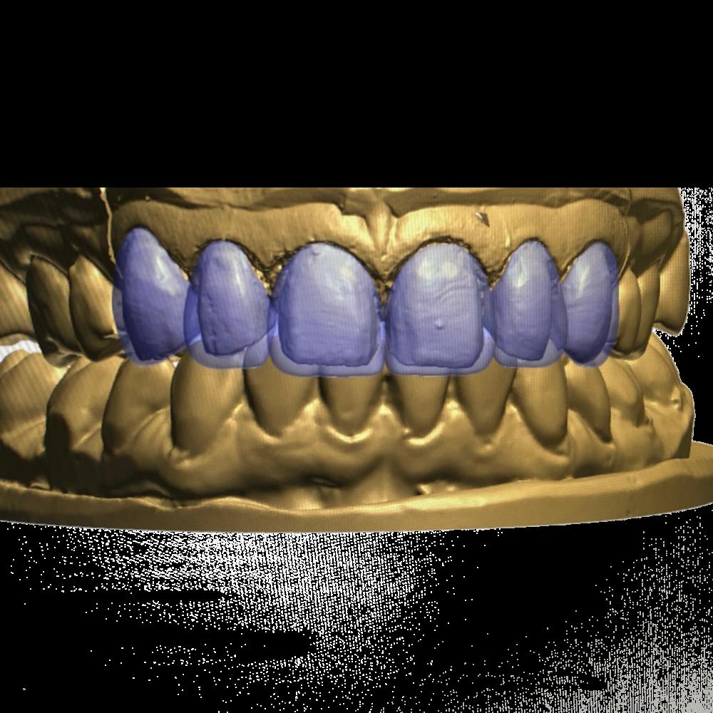 Ceramics Dental Lab CAD CAM Systems Florida Lab
