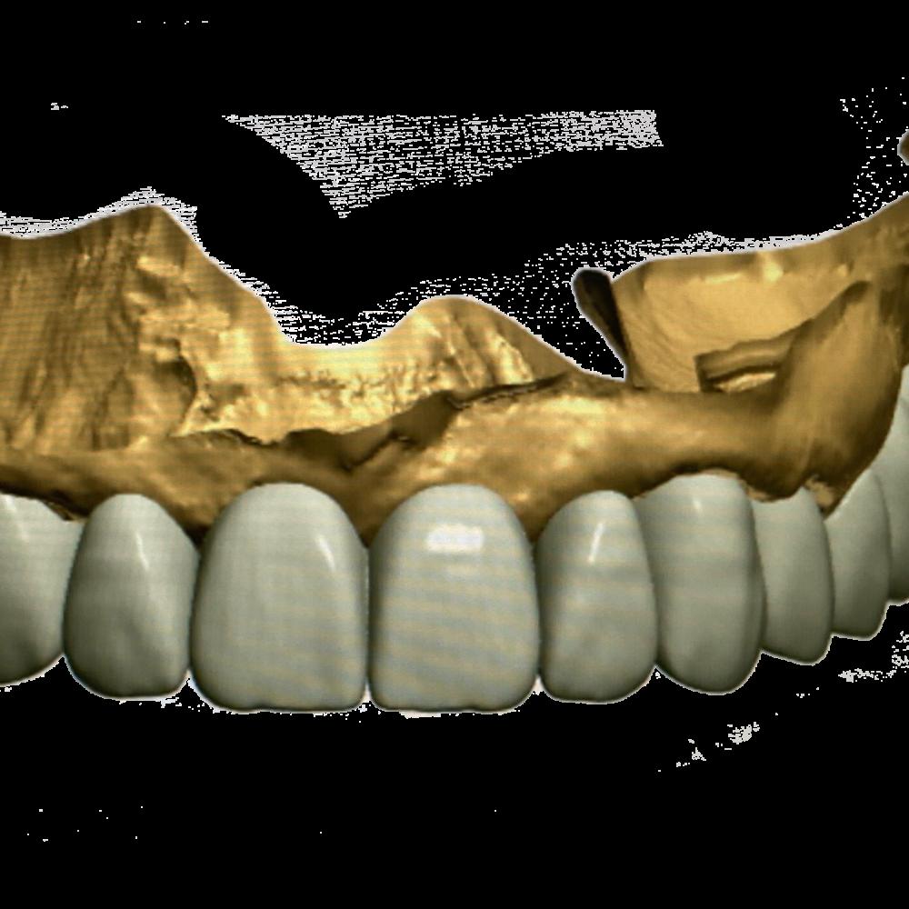 Ceramics Dental Lab Cad Cam Systems North Miami Beach