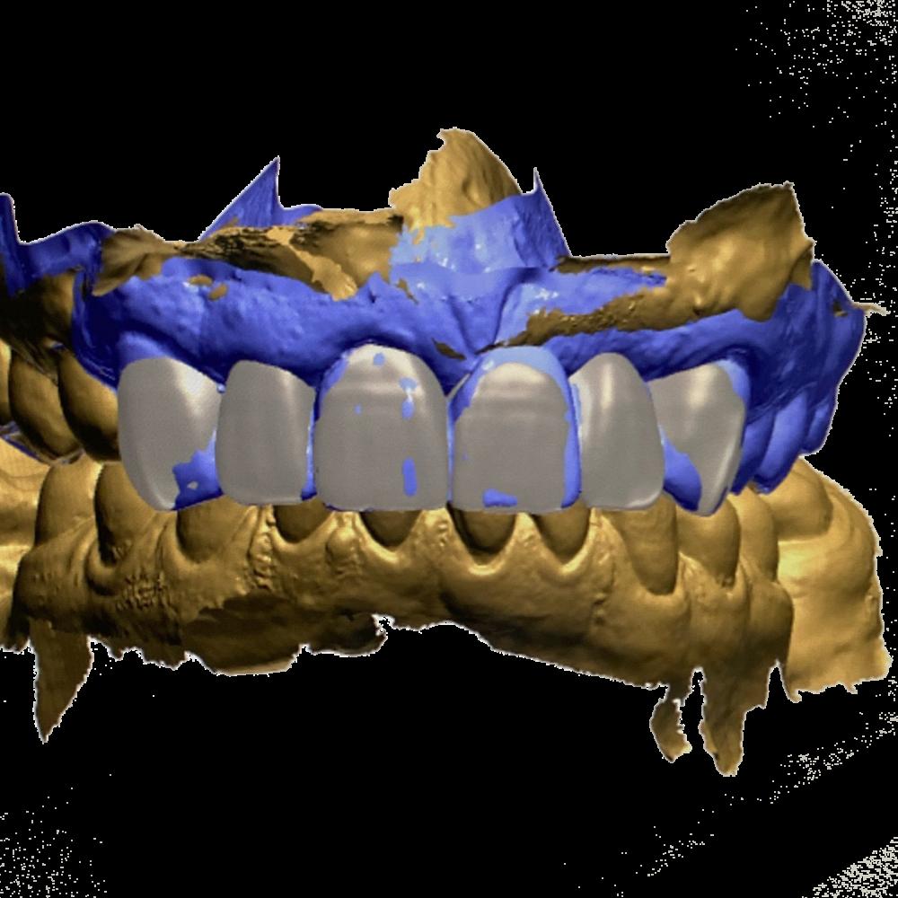 Ceramics Dental Lab Cad Cam digital impressions