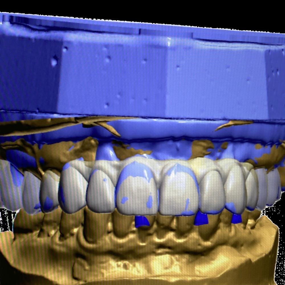 Ceramics Dental Lab North Miami Beach CAD CAM Systems